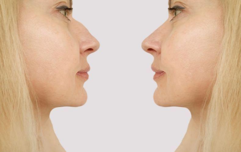 Przed i po operacji nosa w gabinecie Derm Estetyka